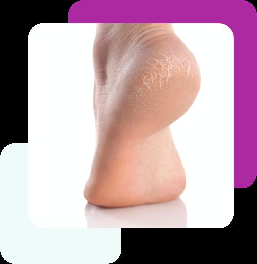 Leczenie pękających stóp