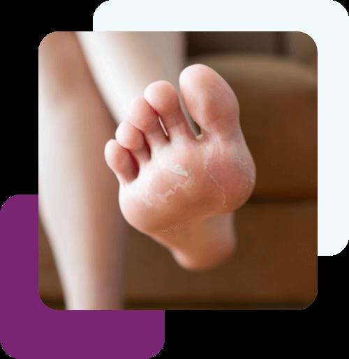 Sucha skóra stóp