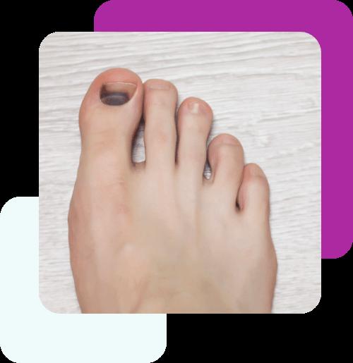 Usuwanie krwiaków pod paznokciem